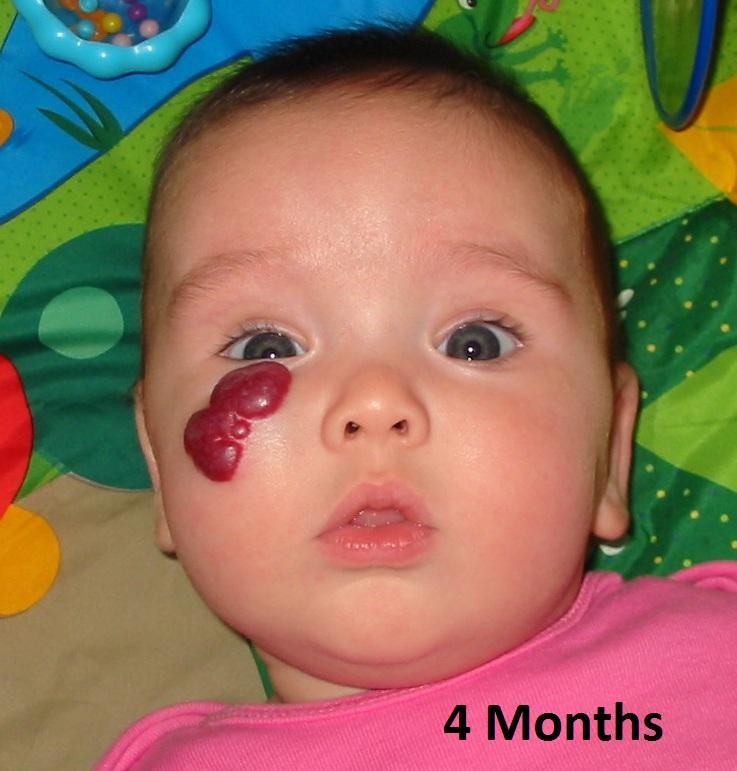 infant hemangioma #10