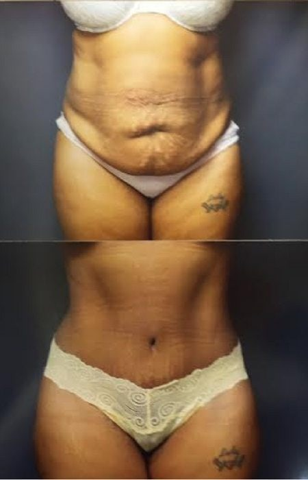 Before and after Abdominoplasty and Diastasis repair