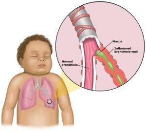 bronchiolitis1