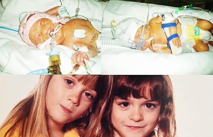 preemie twins
