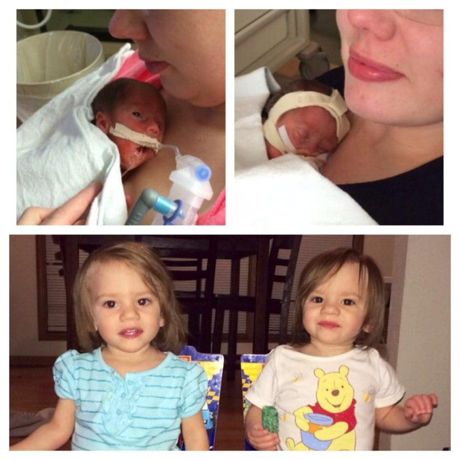 Callie and Kennedy, 2lb, 28 week TTTS and Momo twin survivors!:) They only had a 5% chance to live and spent three months in the nicu.