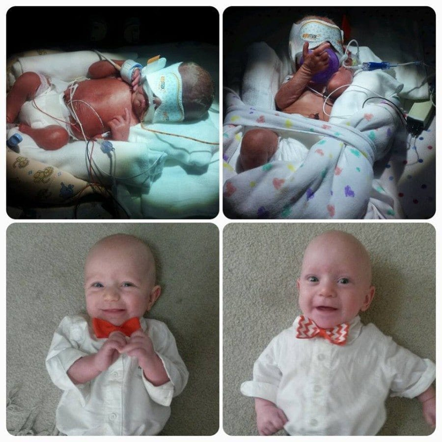 Born at 28.3 weighing 3.1 oz and 2.14 oz. Were in the NICU for 55 and 60 days. Now healthy, growing, crawling 9 month olds. Thankful for my miracle babies! preemie twins