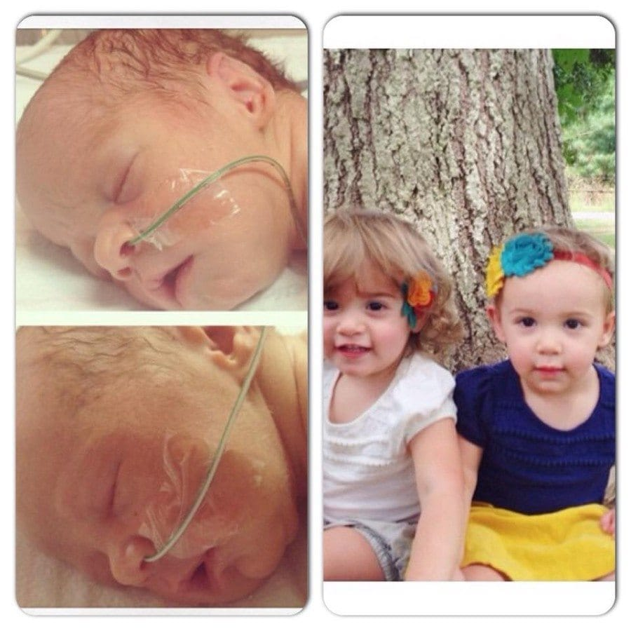 Born at 34 weeks! They will be 2 in February Madelyn-Faith Reneè and Maisyn-Elizabeth Rose. My angels.