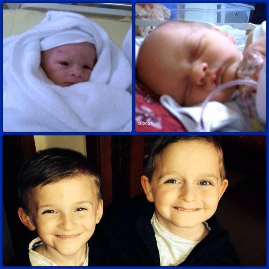 My boys born at 36 wks, smallest of the 2 (left) spent 6 days in scbu, now 7yrs old.