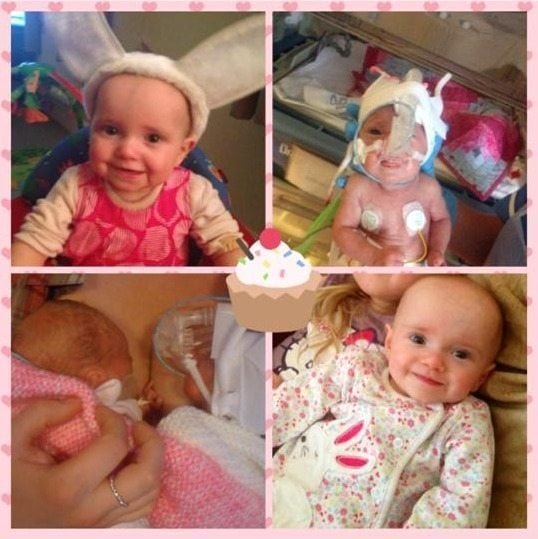 My twins were born at 28 weeks, one stayed in for 13 weeks and the other for 5 months. They are now 18 months.