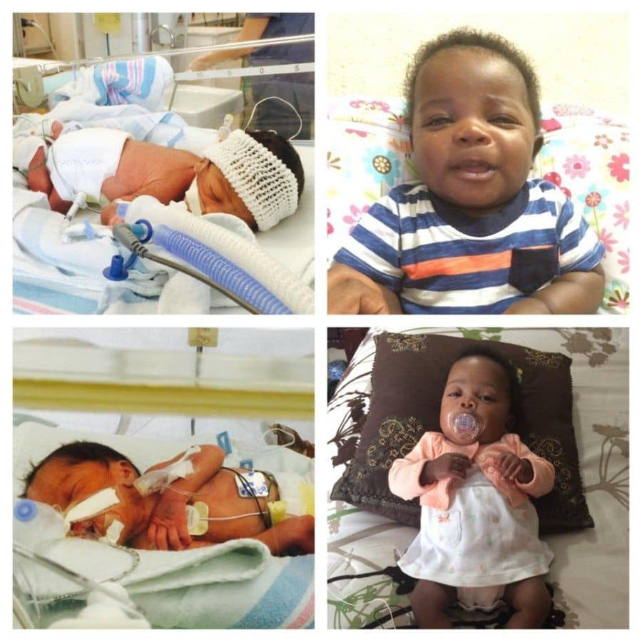 I had my boy/girl twins at 31 weeks and 2 days. My son stayed in the NICU 45 days and my daughter stayed in 54 days. They are now 4 months old and 2 months adjusted.