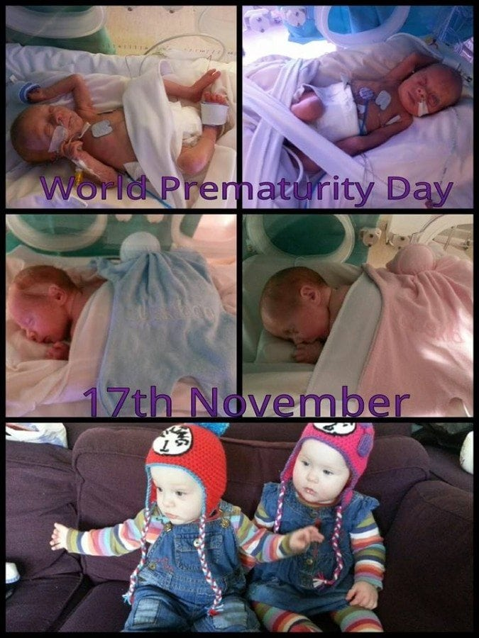 My twins born at 29 weeks 5 days. Daniel weighed 2lbs15oz and Alyssa weighed 3lbs 4oz. They spent six weeks on Neonatal unit before they came home on my birthday. I feel very blessed every time I look at them. They are 11 months now and full of energy and smiles!
