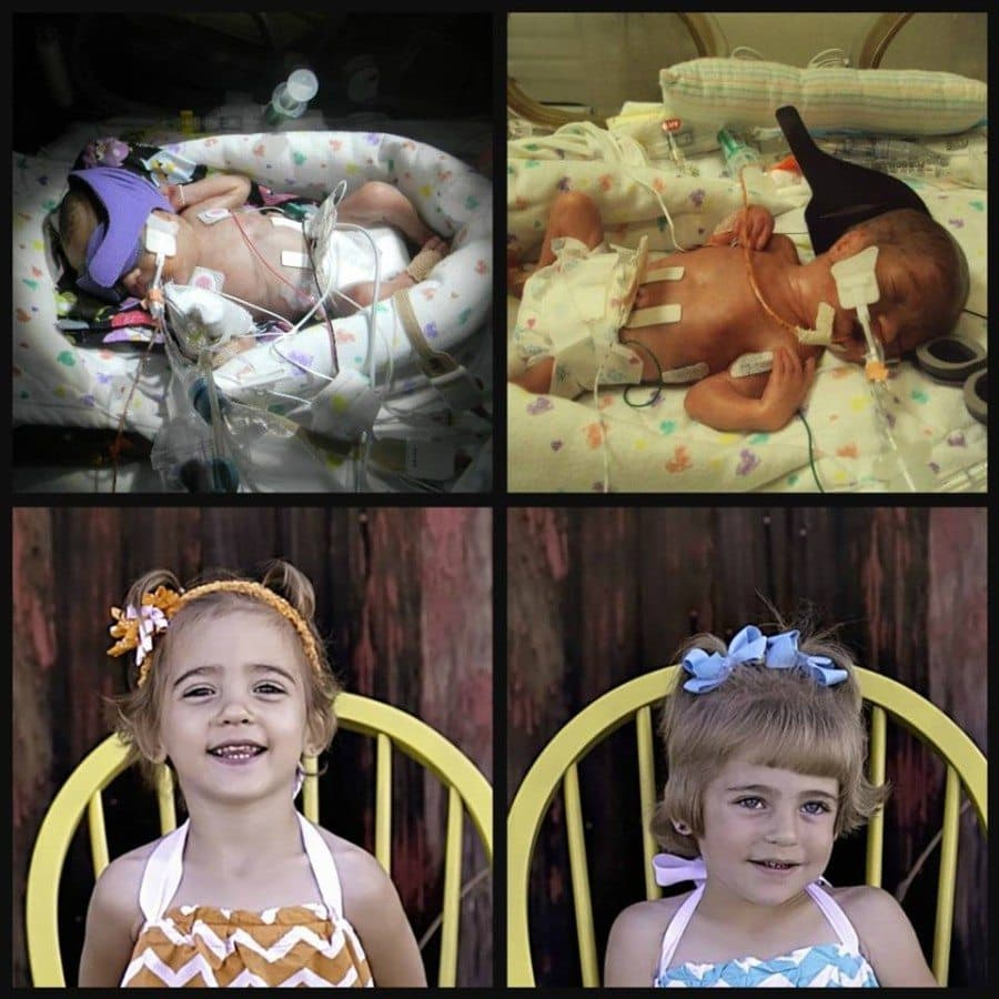 Born at 26w0d, A baby weighed 2lbs 1oz had PDA ligation, ROP, 2 grade 4 brain bleeds in NICU for 112 days, B baby was 1lb 15oz had PDA ligation, ROP and stayed 119 days in NICU. 3 year old miracles!