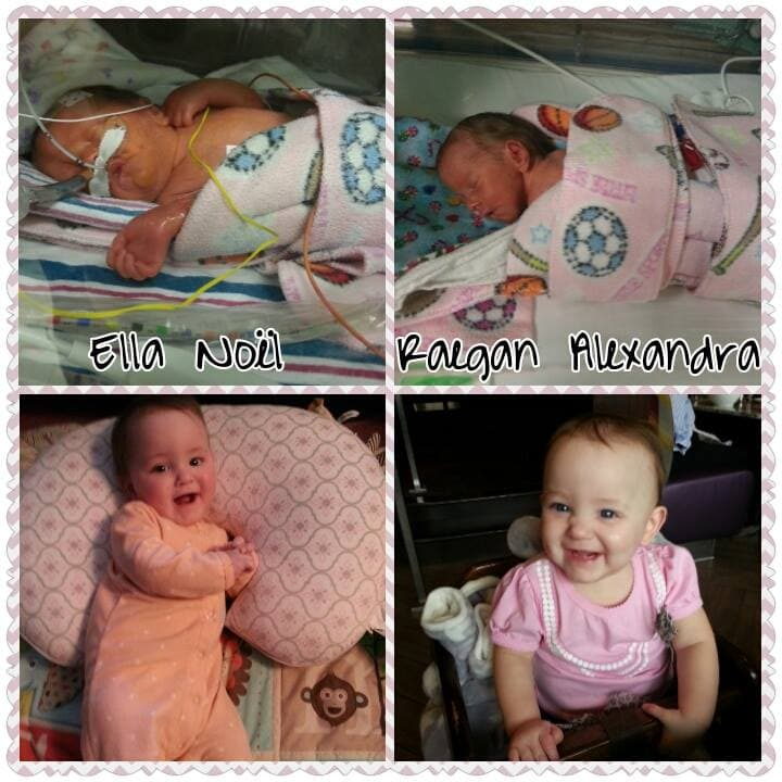 Ella (2 pounds, 10 ounces) and Raegan (2 pounds, 4 ounces) born at 29 weeks, now 8 months corrected were in the NICU 80 days.