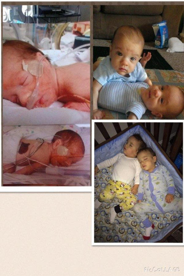 Born at 29 weeks, 11 weeks in the NICU, had minor bilateral hernia surgery, mine are 22 months and going strong!! Reese Michael and Weston Louis. preemie twins
